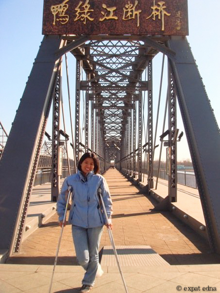 On crutches in Dandong, China by Expat Edna